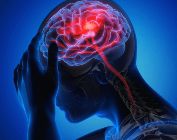 뇌졸중 뇌경색 뇌출혈