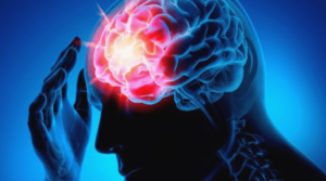 뇌 혈관 질환