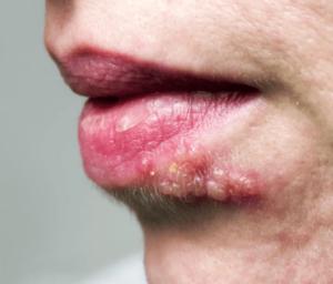 입에 발생한 대상포진 수포